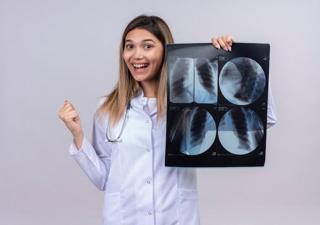 Jovem e bela médica vestindo jaleco branco com estetoscópio segurando o raio-x, cerrando o punho, feliz e saiu do conceito de vencedor