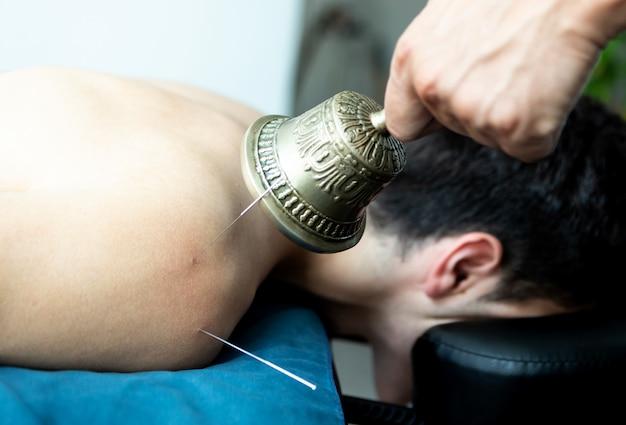 Jovem em uma acupuntura e terapia sonora