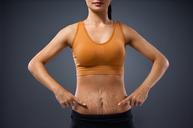Jovem mãe de pé e apontando para a barriga cheia de estrias após a gravidez.