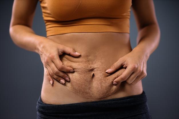 Jovem mãe segurando a barriga cheia de estrias após a gravidez.