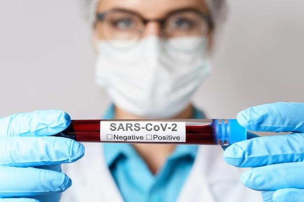Jovem médica está segurando uma amostra de sangue do sars-cov-2