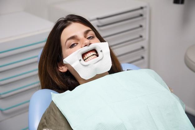 Jovem mulher sentada na cadeira do dentista preparada para o procedimento de clareamento dos dentes.