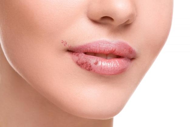 Lábios femininos afetados pelo vírus do herpes