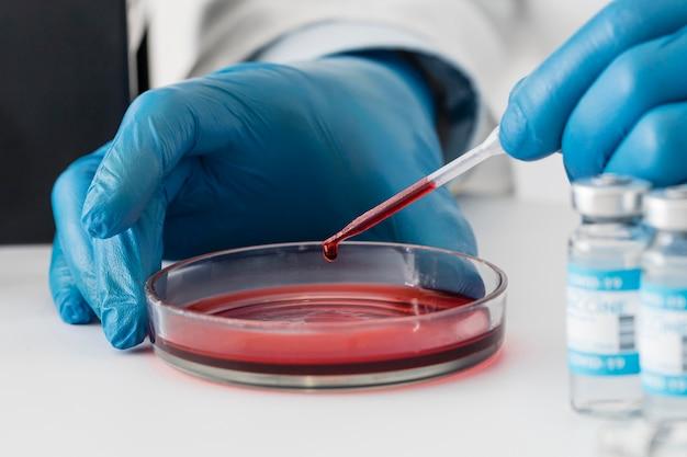 Laboratório de vacina contra coronavírus com amostras