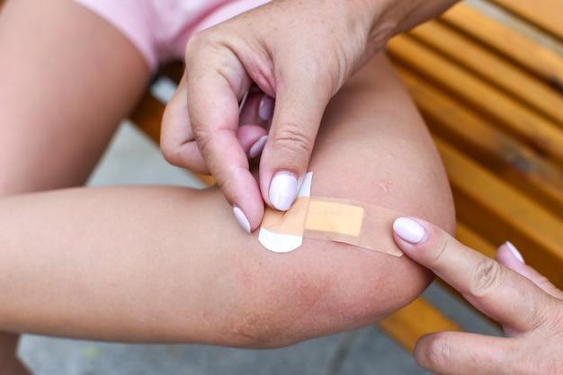 Laceração da perna da criança. a criança machucou a perna. lesão no joelho da menina