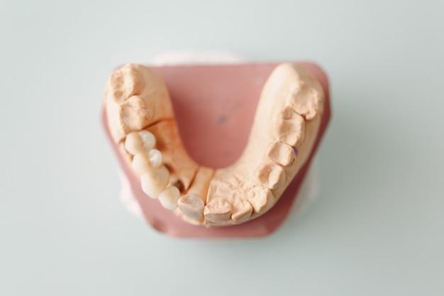 Layout dentário da mandíbula humana com dentes e implantes.