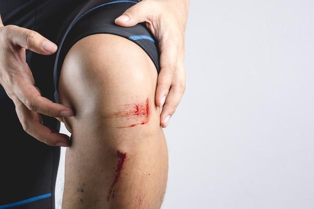 Lesão de ferida de joelho de contusão fresca com alguma pedra pequena e pó partiu de um acidente de bicicleta
