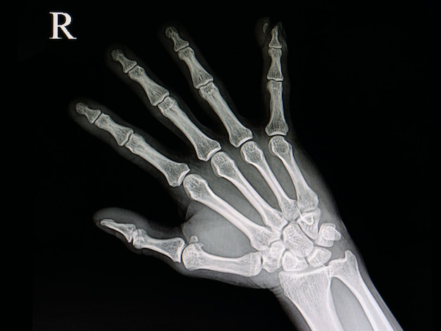 Lesão na ponta do dedo
