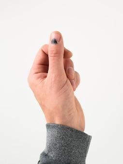 Lesão no polegar. prego preto após ser atingido por um martelo