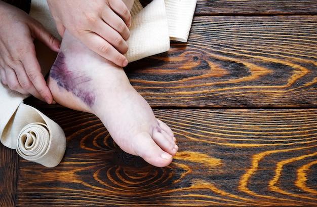 Lesão no tornozelo com luxação e entorses, bandagem apertada com curativo e tratamento de pomada