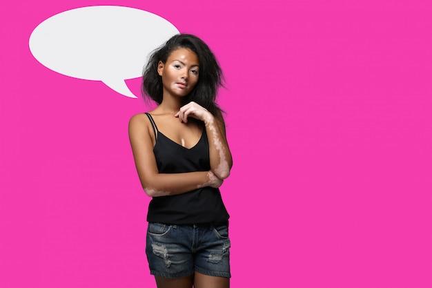 Linda garota africana em estúdio com problemas de pele vitiligo