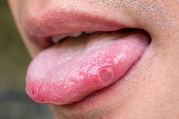Língua com úlceras de homem adulto