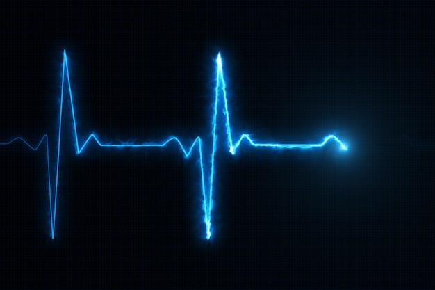 Linha azul do cardiograma