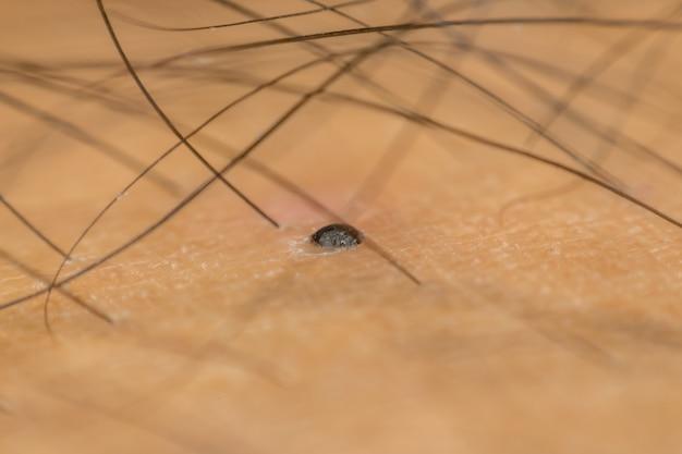 Macro de pele seca asiático humano com peludo preto e dermatologia e poros na pele enrugada