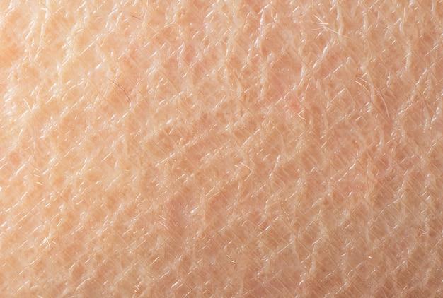 Macro foto de superfície do cabelo da pele humana menos