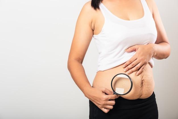 Mãe mulher usar lupa mostrar estrias pele do abdômen inferior solta ela gorda após a gravidez bebê nascimento