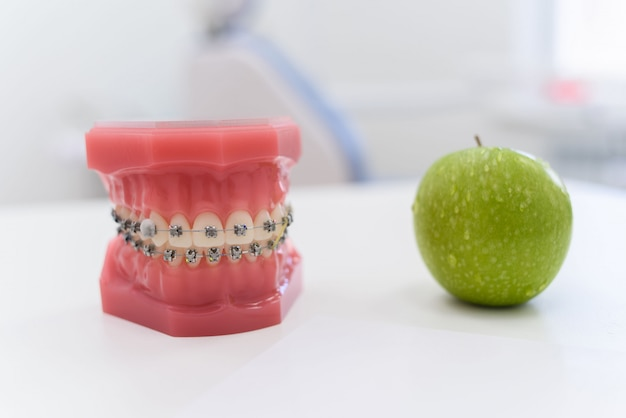 Mandíbulas artificiais com aparelho mentem com uma maçã verde em cima da mesa