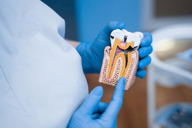 Manequim de dente doente com cárie, dentista mostra estrutura dos dentes.