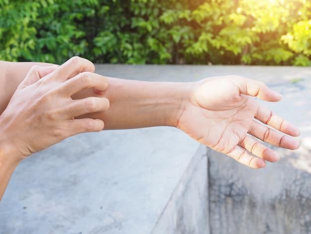 Mão coçando o braço de coceira com doenças de pele, pele seca, dermatite ou eczema.