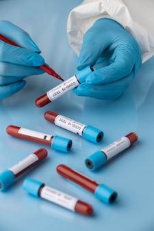 Mão com luvas de proteção segurando amostras de sangue para teste ambíguo