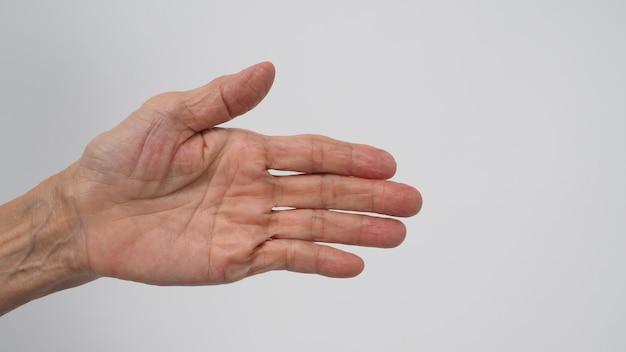 Mão com pele enrugada que teve artrite ou dedos em gatilho de mulher idosa ou idosa em fundo branco.