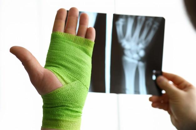 Mão de close-up embrulhada em bandagem e mão de raio-x