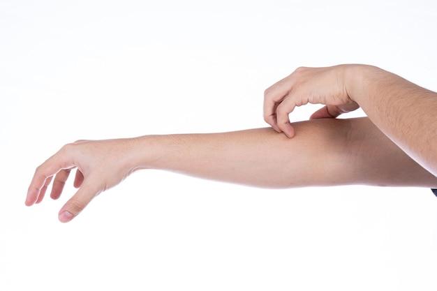 Mão de homem coçando o braço isolado fundo branco