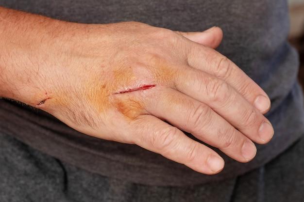 Mão de homem com corte ferido
