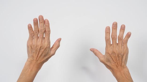 Mão de mulher idosa ou idosa que teve artrite ou dedos em gatilho em fundo branco.