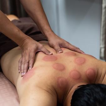 Mão de um médico que trata a massagem nas costas do homem com marcas de sangue massageadas após tomar terapia de degustação chinesa
