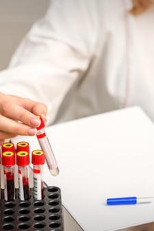 Mão de um técnico de laboratório ou enfermeira tira um tubo de ensaio de sangue vazio da prateleira do laboratório de pesquisa