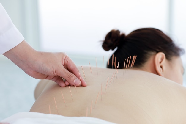 Mão do médico realizando terapia de acupuntura. mulher asiática em tratamento de acupuntura com uma linha de agulhas finas inseridas na pele do corpo no hospital clínico