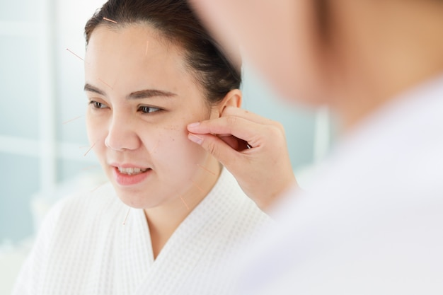 Mão do médico realizando terapia de acupuntura. mulher asiática em tratamento de acupuntura com uma linha de agulhas finas inseridas na pele do rosto no hospital clínico