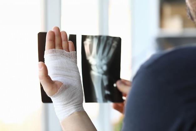 Mão enfaixada masculina segura closeup de imagem de raio-x