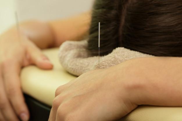 Mão feminina com agulhas de aço durante o procedimento de terapia de acupuntura