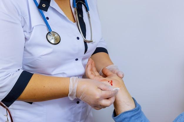 Mão ferida de ferida recente com paciente com sangue visitando médico traumatologista