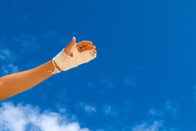 Mão quebrada em molde branco sobre fundo de céu azul com espaço de cópia