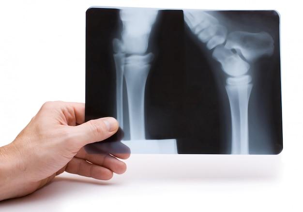 Mão segura radiografia isolada em um espaço em branco
