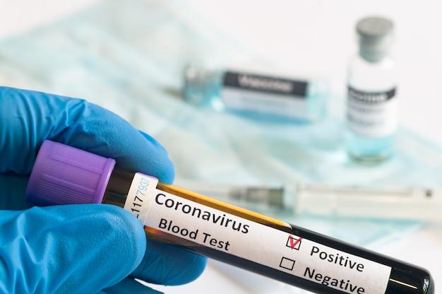 Mão segurando amostras de sangue de pacientes para teste de coronavírus