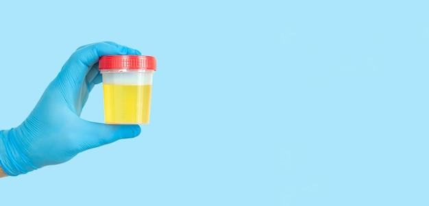 Mão segurando um recipiente de amostra de urina para urinálise médica