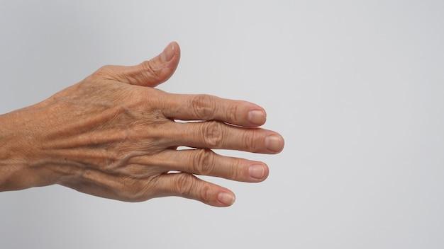 Mão traseira com pele enrugada que teve artrite ou dedos em gatilho de mulher idosa ou idosa em fundo branco.