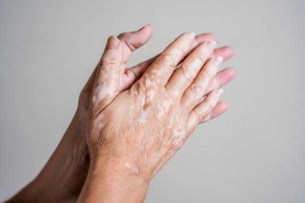 Mãos com problema de pele com vitiligo