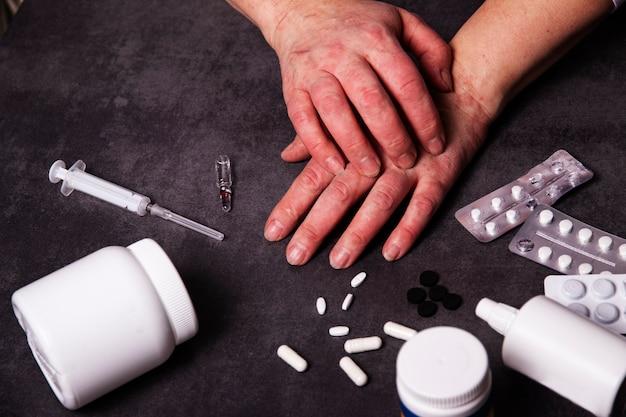 Mãos com problemas dermatológicos alérgicos. medicamentos, ampola para o tratamento de alergias