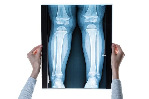 Mãos com raio-x de pernas, conceito de lesão na perna
