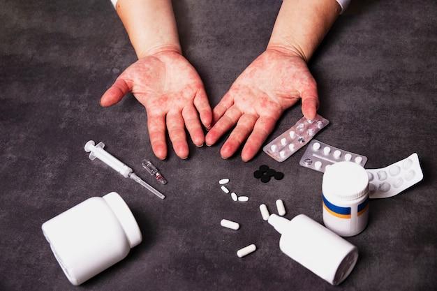 Mãos com reações alérgicas e medicamentos para o tratamento de alergias