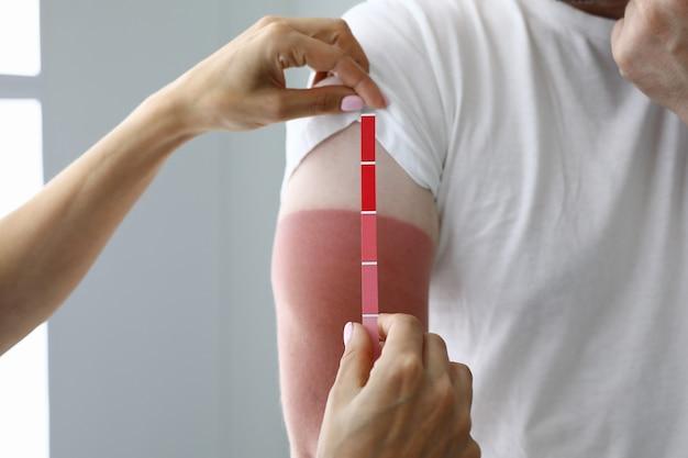 Mãos de médicos segurando uma escala de cores de teste perto de pacientes