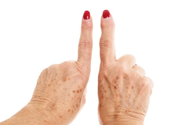 Mãos de mulher idosa deformadas por artrite reumatóide