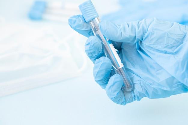 Mãos de um técnico de laboratório com um tubo de amostra de sangue