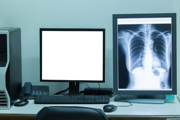 Máquina de tomografia computadorizada ou tomografia axial computadorizada em quarto de hospital.