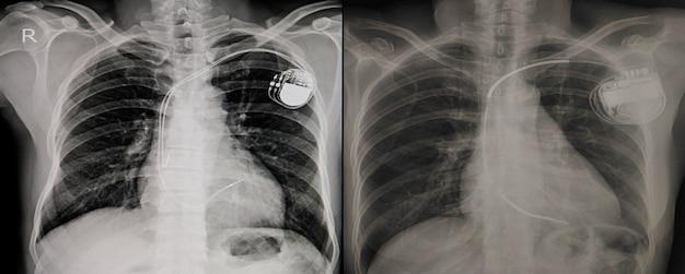 Marcapasso permanente e cardioverter-defibrillator implantável automatizado